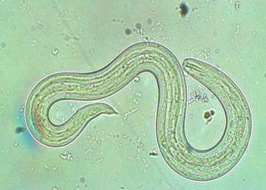 rat lung worm